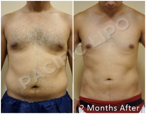 Military Liposculpture by Pacific Lipo's Director of Surgery, Rod Davis PA