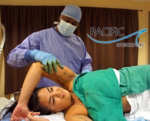 Pacific Lipo Arm Procedure with Rod Davis PA