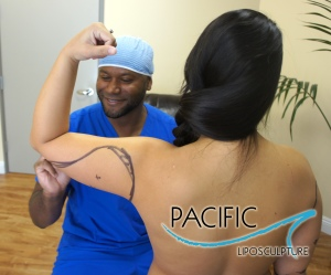 Pacific Lipo Preparation Arm With Rod Davis PA
