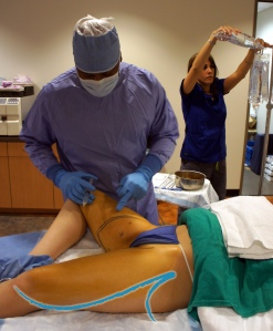 Pacific Lipo Procedure Thigh