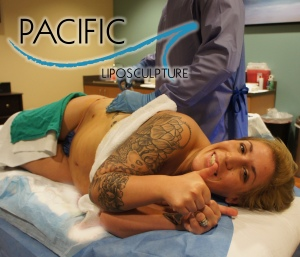 Pacific Lipo Trina Procedure