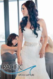 Wedding Lipo Pacific Lipo