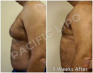 Pacific-Lipo-Male-Breast-Reduction